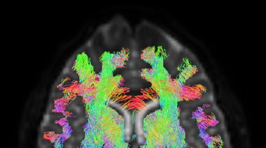 Imágenes cerebrales permiten diferenciar migraña episódica y crónica