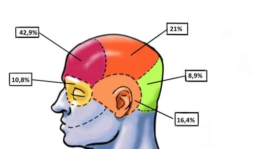 Similar a una migraña: un amplio estudio científico precisa cómo es el dolor de cabeza por resaca